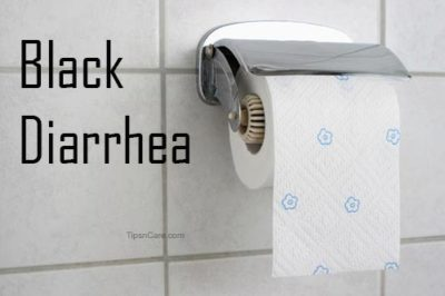 black diarrhea