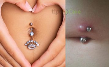 Infected belly button piercing