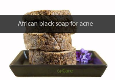 african black soap for acne