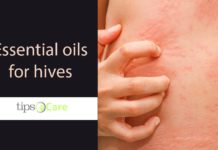 essential oils for hives