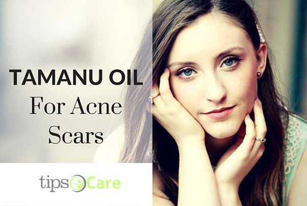 Tamanu oil acne