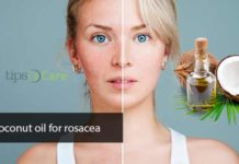 coconut oil for rosacea