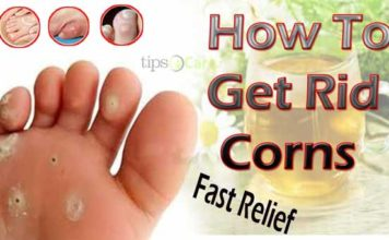 how to get rid of corns