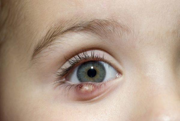 Pimple Under Eye